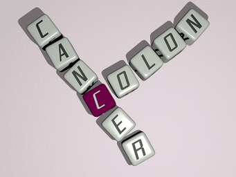 How long does colon cancer take to kill?